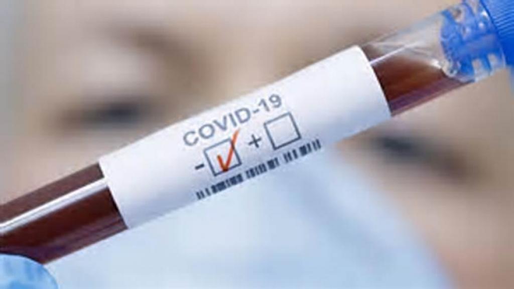 42-годишна русенка е с положителна проба за COVID 19